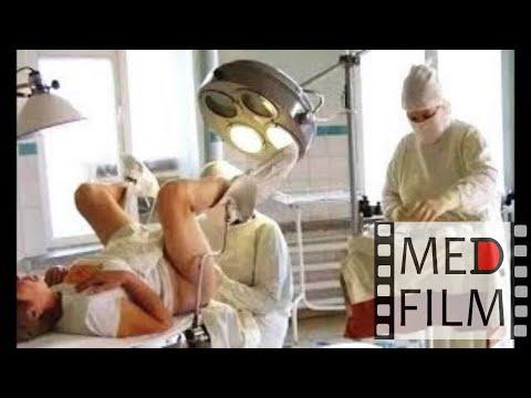 Вагинальная операция видео это