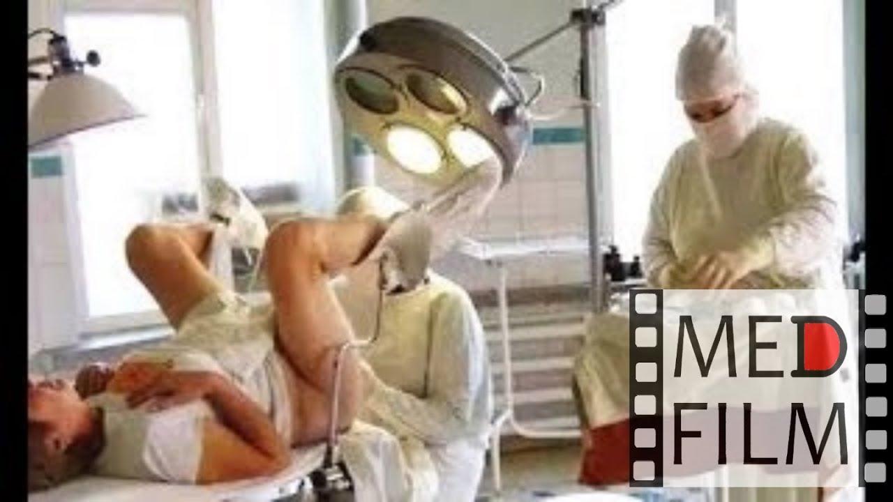 Внематочная беременность. Операция © Surgery for an ectopic pregnancy