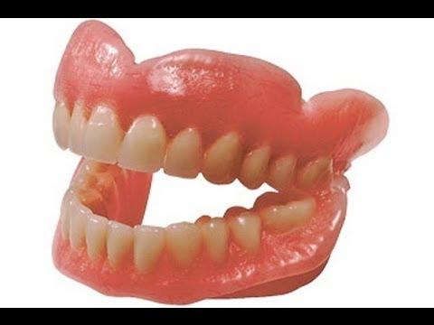 Как делают зубные протезы съемные видео