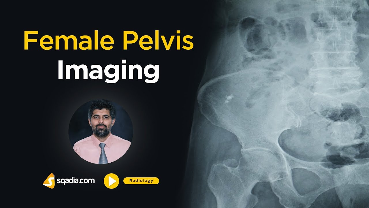 Female Pelvis Imaging | Medical Radiology Online Lectures | V-Learning | sqadia.com #MedicalRadiology