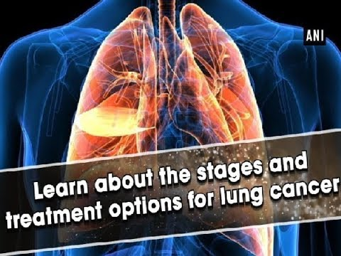 Learn about the stages and treatment options for lung cancer – ANI News