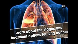 Learn about the stages and treatment options for lung cancer - ANI News