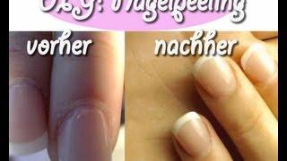 DIY: Nagelpeeling gegen trockene/rissige Nagelhaut in 1 min. herstellen