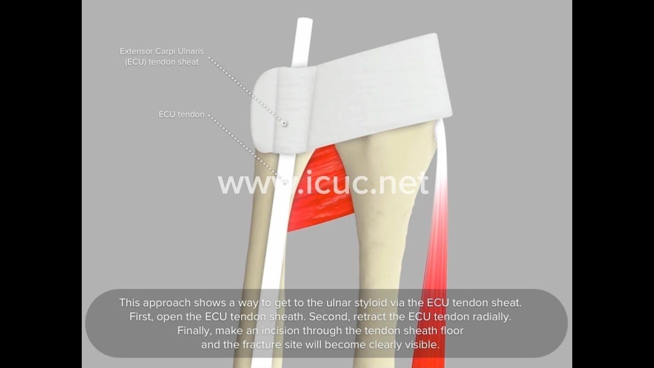 Ulnar Styloid Approach - ICUC® Video - YouTube