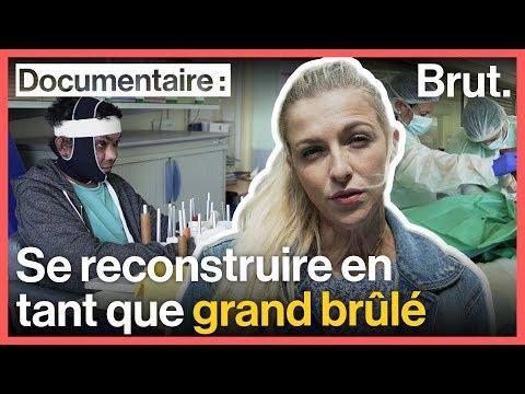 Julie Bourges Retrace Le Parcours D'un Grand Brûlé