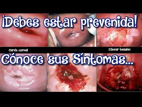 6 SINTOMAS más IMPORTANTES del CANCER de CUELLO UTERINO / QUE ES CÁNCER DE CUELLO UTERINO