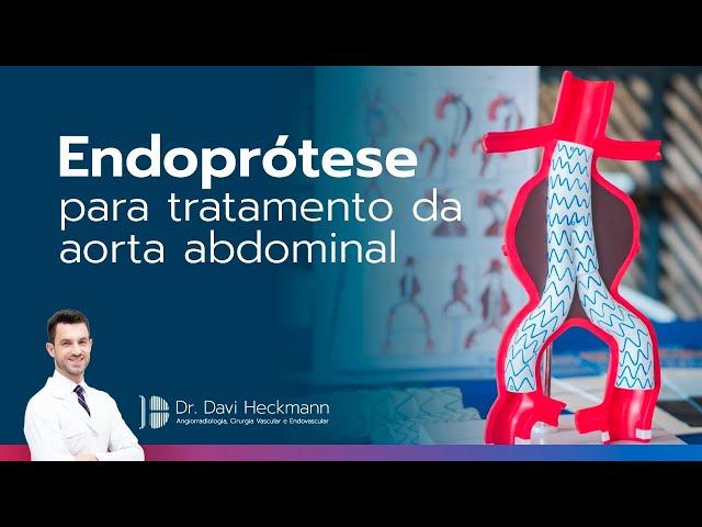 Endoprótese para tratamento da aorta abdominal | Dr. Davi Heckmann