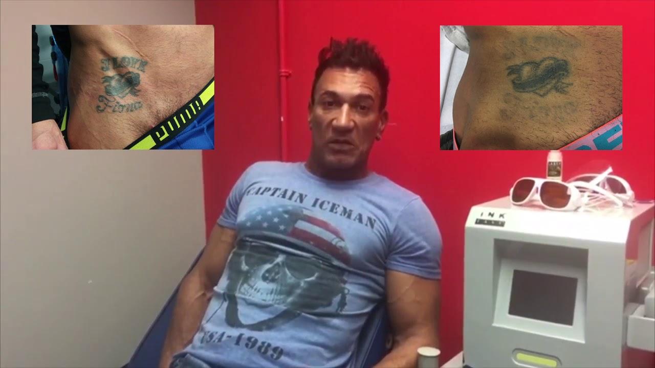 Testimonio Marco Banderas, actor; Eliminación de Tatuaje - YouTube