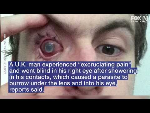 Mel Taylor - Man Goes Blind After Taking Shower With His Contacts....