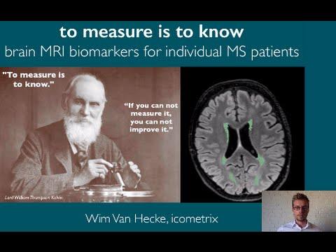 brain mri biomarkers in multiple sclerosis youtube