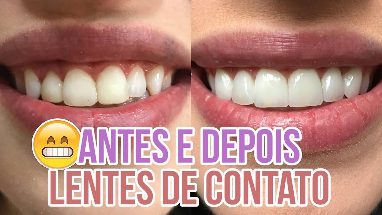 a74a8c3c2d367 MUDEI MEU SORRISO - LENTES DE CONTATO NOS DENTES - YouTube