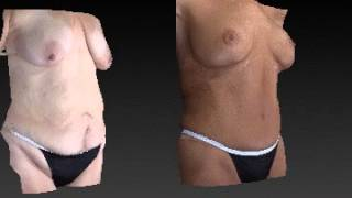 Mommy Makeover 3D Before and After - 1