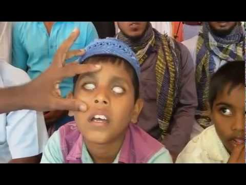 Please Help This Sri Lankan Blind Child For His Eye