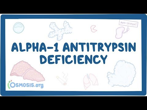 Alpha-1 Antitrypsin Deficiency - causes, symptoms, diagnosis, treatment, pathology