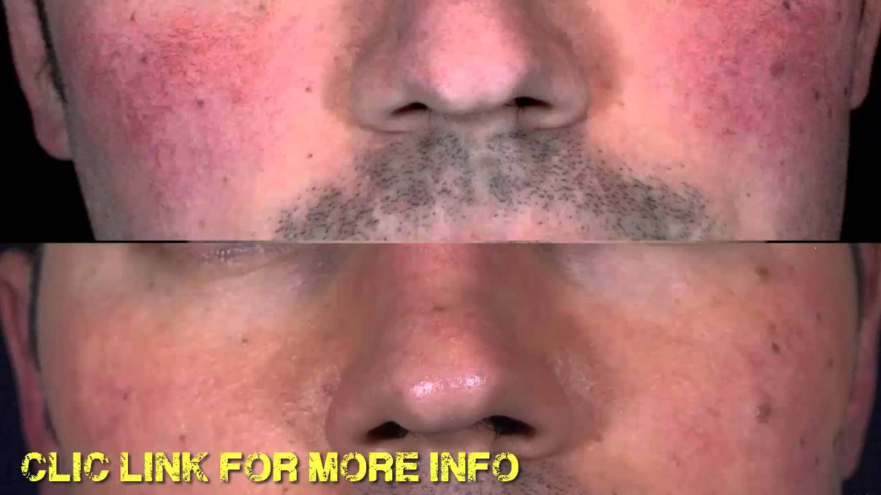 Communication on this topic: Do You Have Rosacea, do-you-have-rosacea/