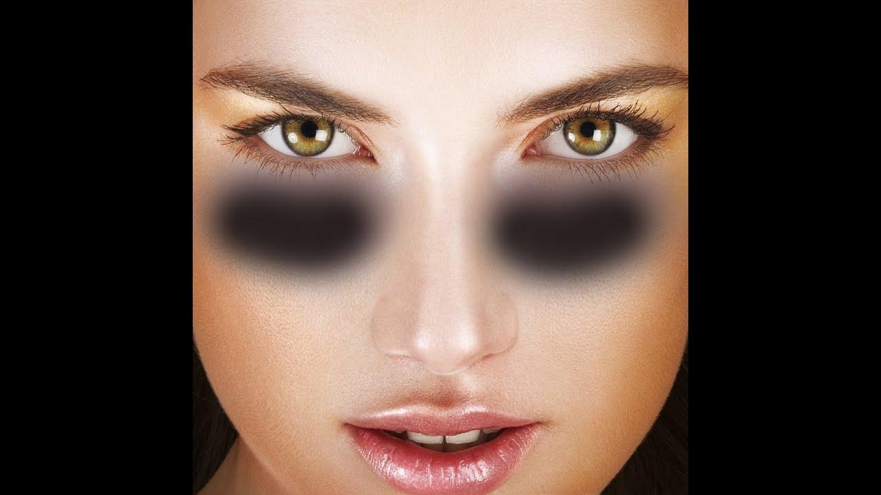 Göz çevresindeki morluklar nasıl geçer