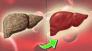 Best Foods for Liver Repair & Foods to Avoid For Healthy Liver