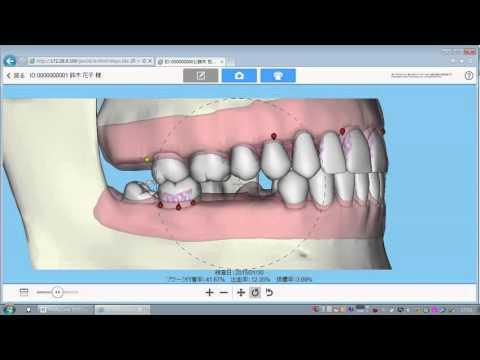 歯周状態説明支援システム紹介ムービー