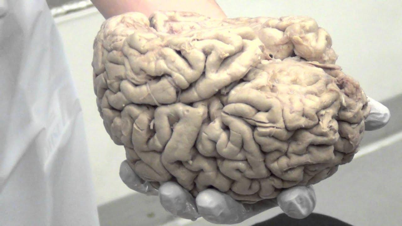 real human brains wwwpixsharkcom images galleries