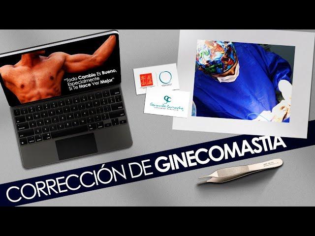 Cirugía de Ginecomastia  Bogota - Colombia