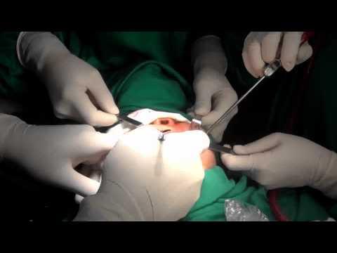 Phẫu thuật khuôn mặt trái xoan   Thẩm mỹ mặt v line