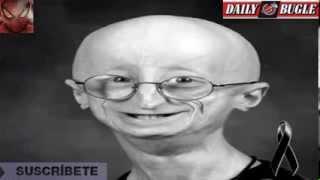Video Muere Sam Berns, el adolescente con cuerpo anciano download MP3, 3GP, MP4, WEBM, AVI, FLV Juni 2018