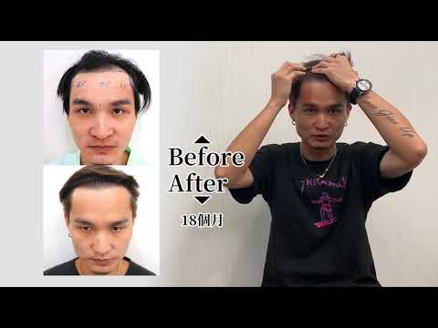 植髮經驗談│請給我一個會賺錢的髮型! | KAI的術後18個月回診 | 林宜蓉醫師 Dr.Yi Jung Lin 台灣植髮 Taiwan hair transplant