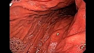 Endoscopia de Hernia del Hiato