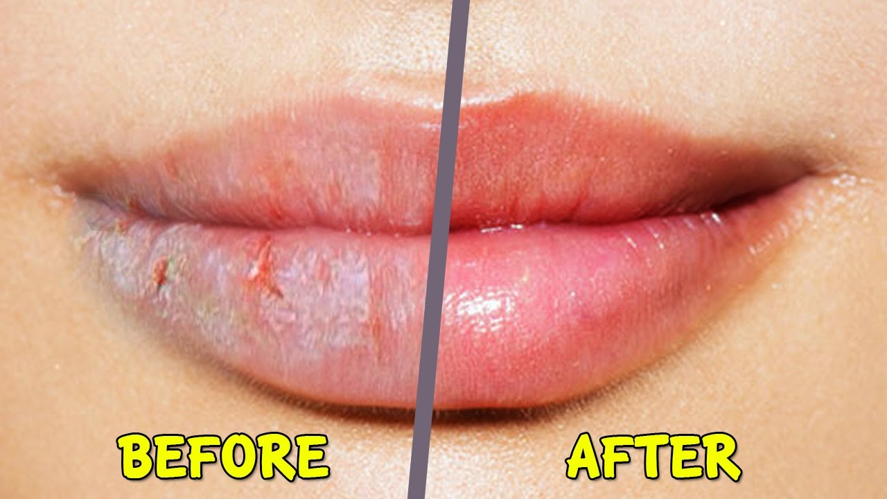 5 best home remedies for dry chapped lips