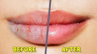 Best Home Reme Dry Ed Chapped Lips Winter
