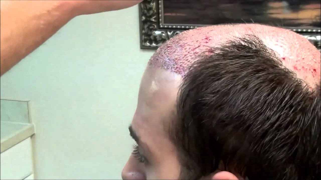 Hair Transplant Surgery Youtube