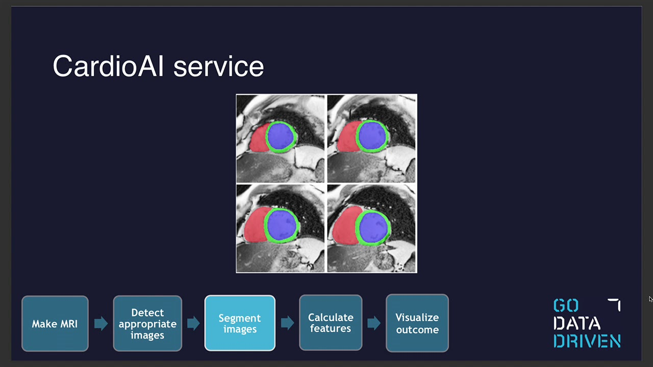 CardioAI: Automated Medical Diagnosis from MRI and Patient Data Using Deep  Learning with Ivo Everts