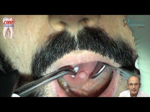 74- Verruga lingual