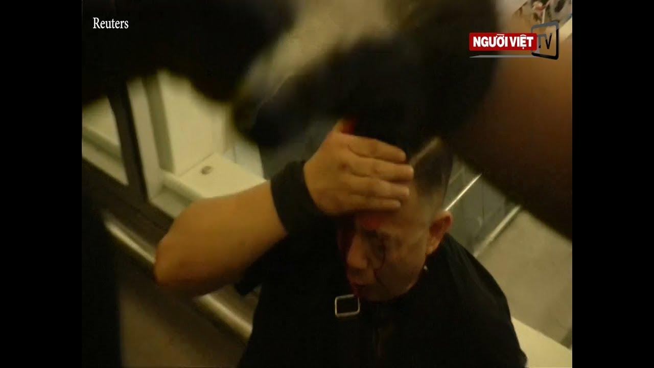 Người biểu tình Hong Kong đánh 'cảnh sát chìm' Trung Quốc đổ máu tại phi trường