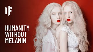 What If Everyone Was Albino?