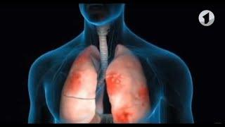 Что такое пневмония? / Здравствуйте