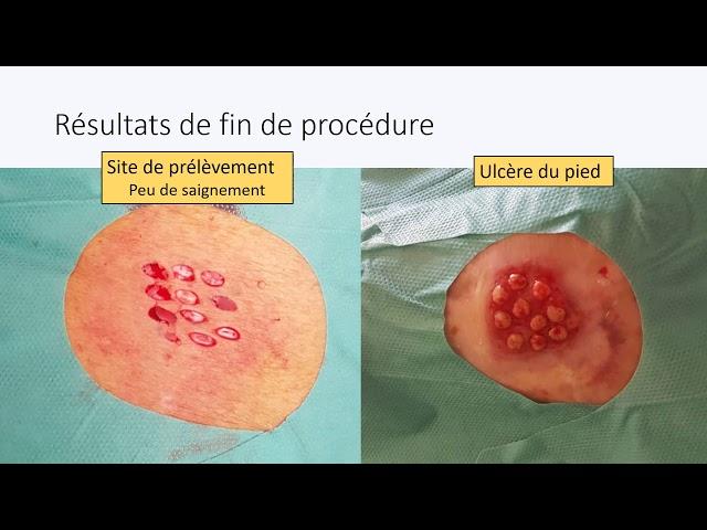 Greffe d'ulcère veineux sous traitement anticoagulant - Société Française de Phlébologie