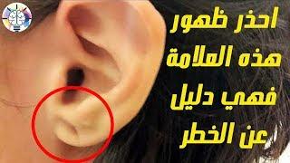 إذا ظهرت هذه العلامة في أذنك فعليك علاج المشكلة فورا قبل تفاقمها تفاصيل هامة جدا Youtube