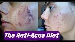 hqdefault - Csiro Teenage Anti Acne Diet
