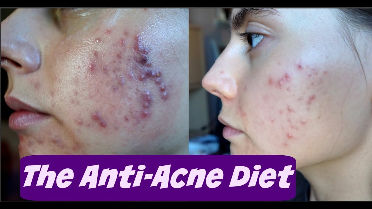 Getting Rid Of Acne Through Diet Anti Acne Diet Acne Free In One Week Experiment