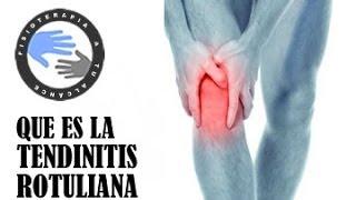 La superior al la muslo parte dolor levantar del rodilla en