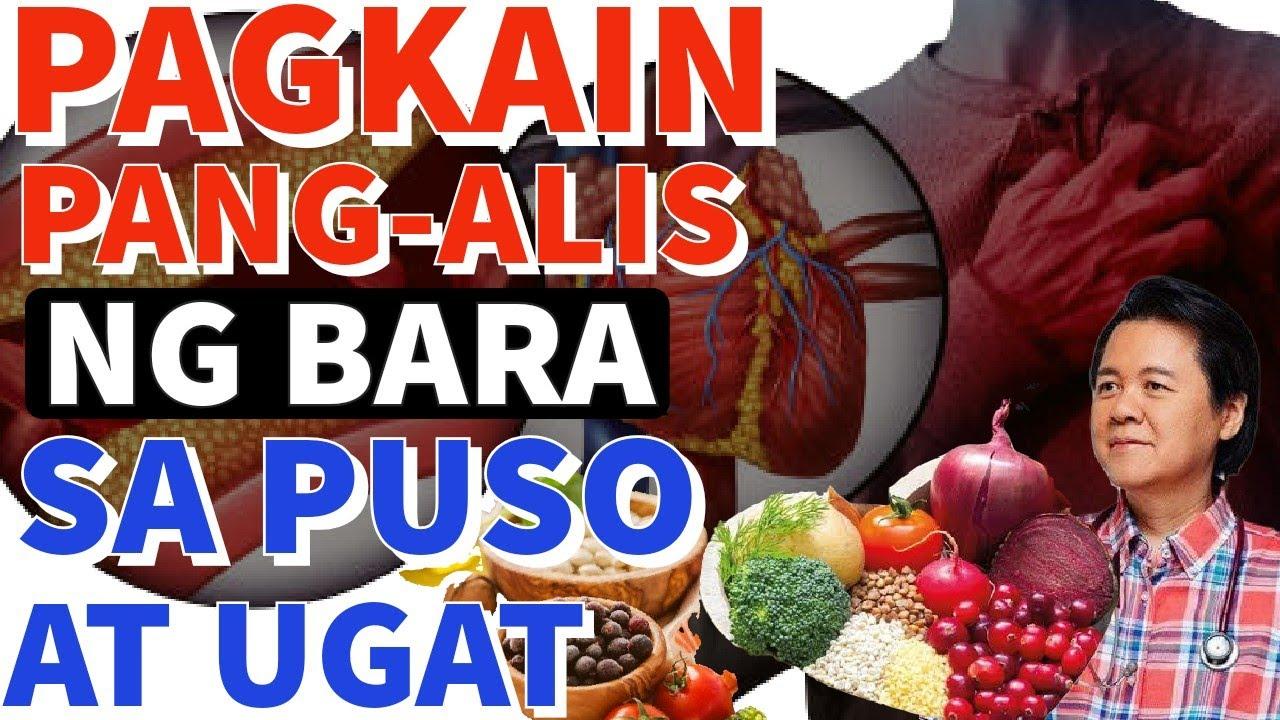 Pagkaing Pang-Alis ng Bara sa Ugat. Kainin ito - Payo ni Doc Willie Ong #537d
