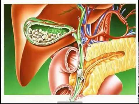 Лечение желчнокаменной болезни по системе Тетюка