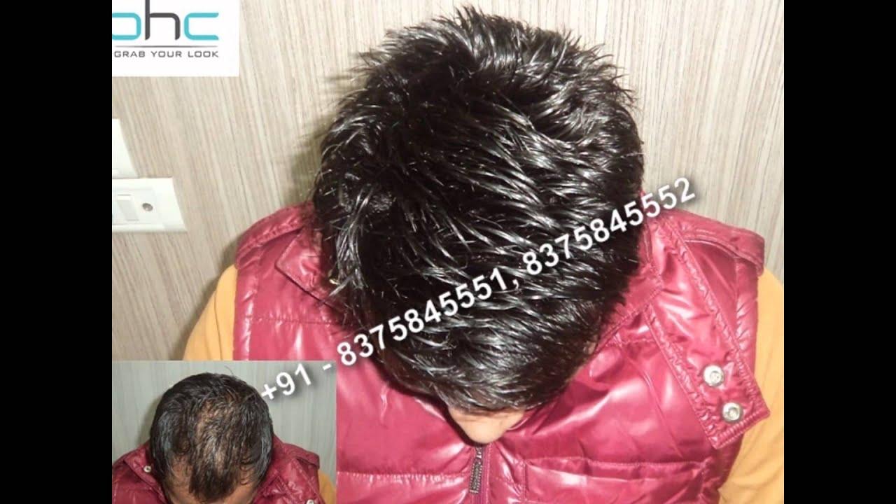 Hair bonding in delhi ncr noida gurgaon india youtube hair bonding in delhi ncr noida gurgaon india pmusecretfo Gallery
