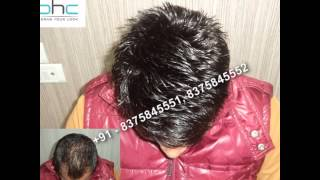 Hair bonding in Delhi Ncr Noida Gurgaon India