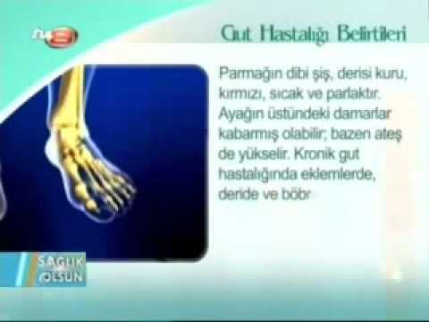 Gut Hastalığı Nedir Belirtileri Tedavisi Gut Hastalığı Nasıl Geçer