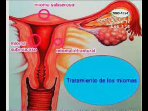 miomas en el utero son peligrosos