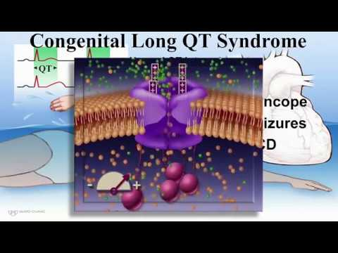 Channelopathies And ICDs - Mayo Clinic
