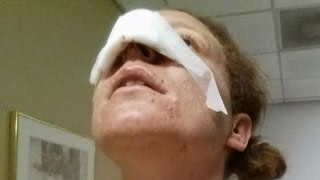 Woman Gets New Nose After Her Boyfriend Allegedly Bit Hers Off