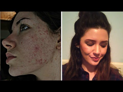 My Full Evening Skin Care Routine For Acne & Scar Fading! | Melanie Murphy
